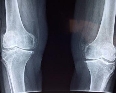 sintomas da artrite